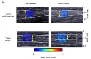 Sample ultrasound images from gastrocnemius and tibialis anterior showing greater shear wave velocity on more affected limb.