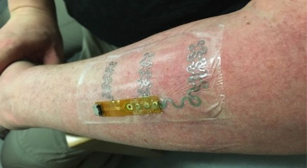 The flexible electrode on the forearm of one of our co-designers.
